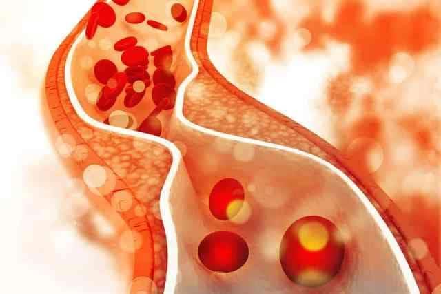 Blood Vessels in Artery - Causes of Peripheral Arterial Disease